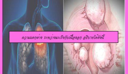 ความแตกต่าง ระหว่างมะเร็งกับเนื้องอก อธิบายได้ดังนี้